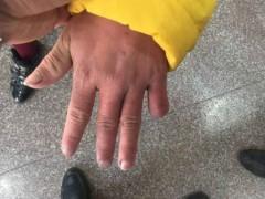 12岁女孩遭亲妈家暴:哥哥否认其手指被母亲剪断 没有的事